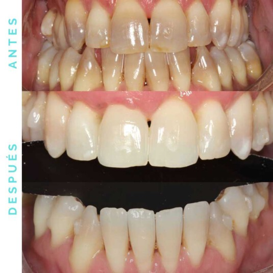 proceso-blanqueamiento-dental