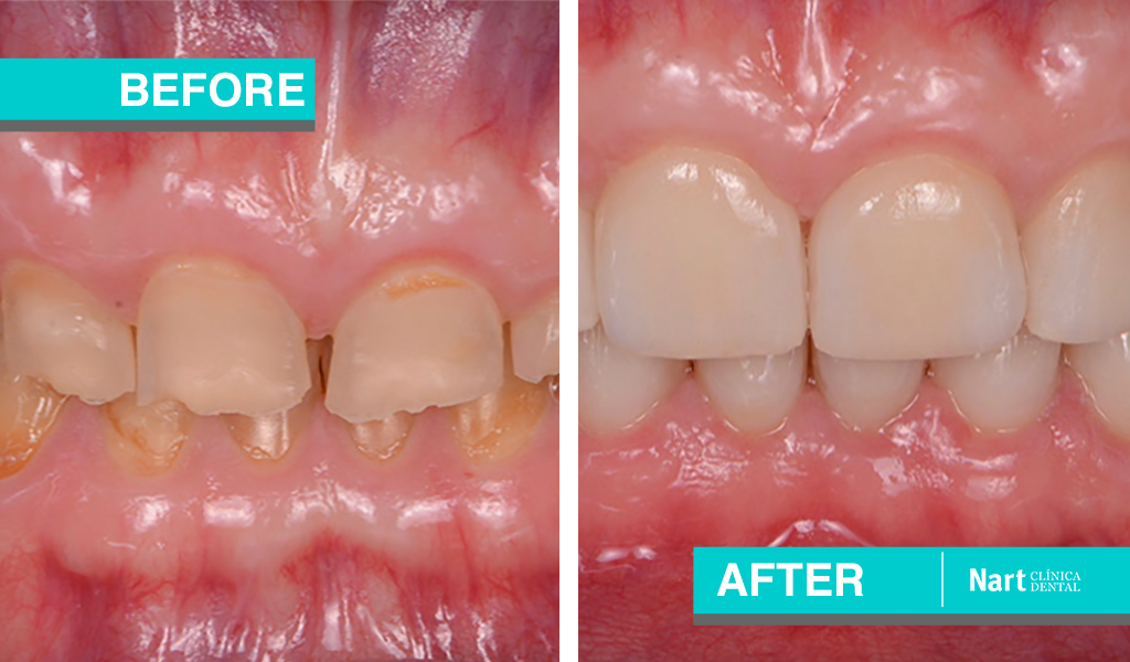 bruxism and tooth erosion